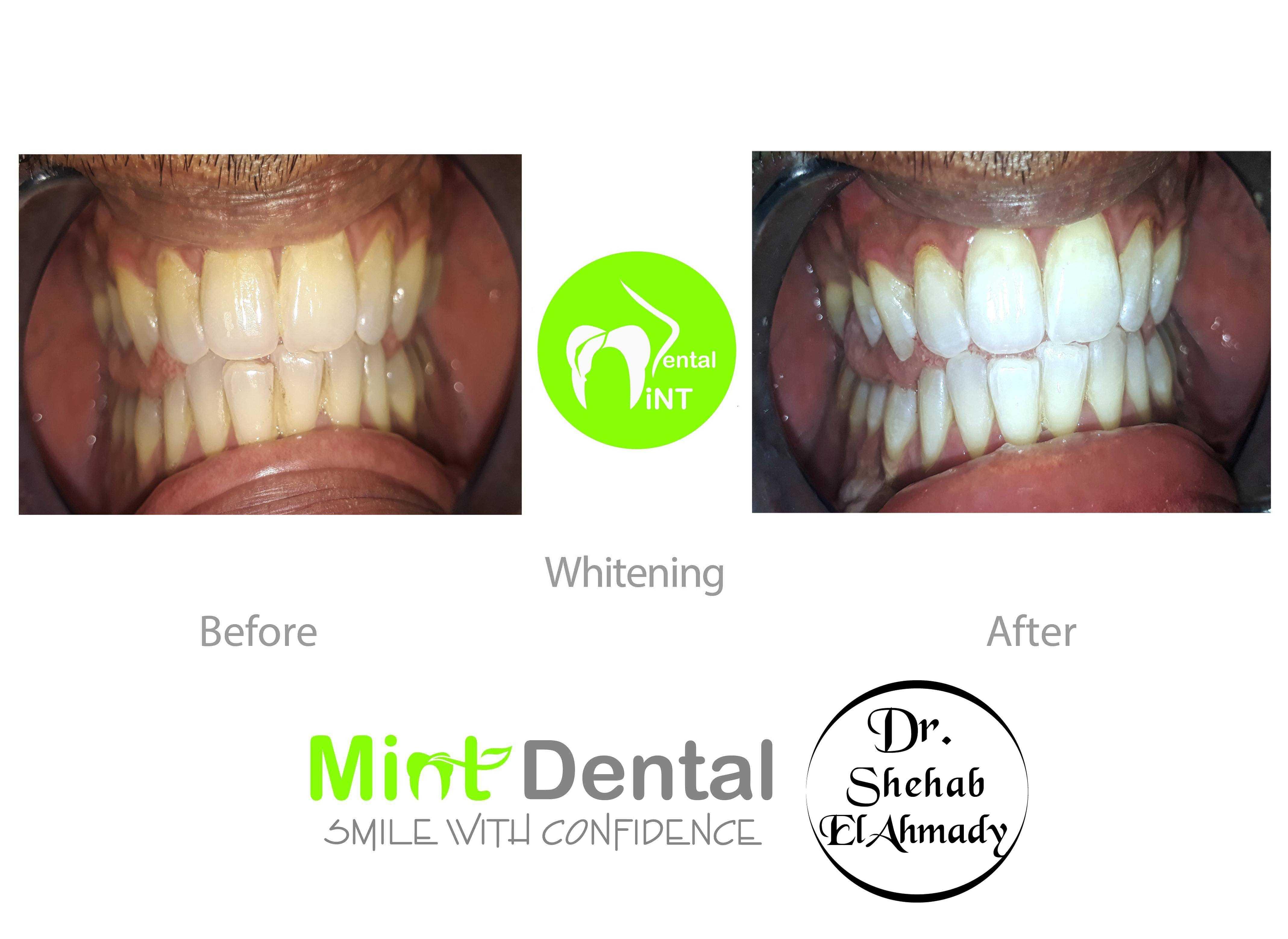 Book now with Clinic Mint Dental Dentist - Vezeeta com
